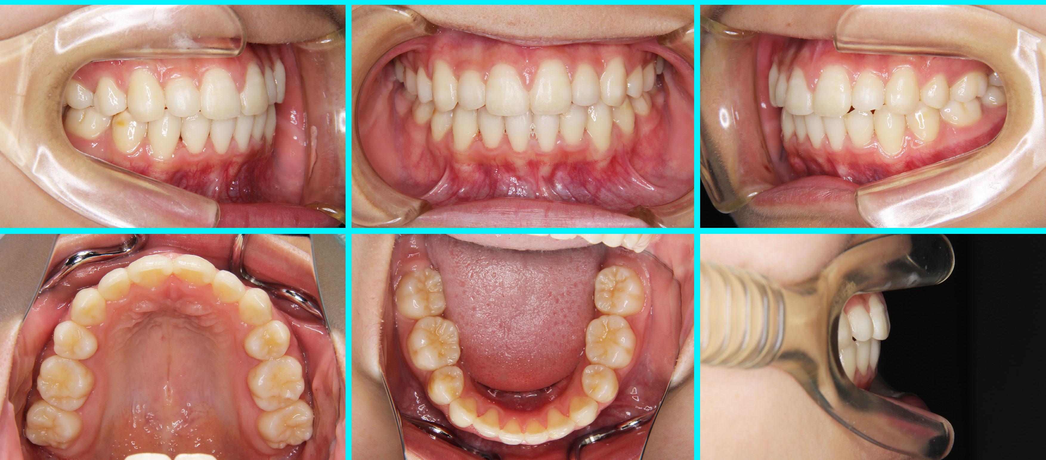 ⑤叢生・八重歯