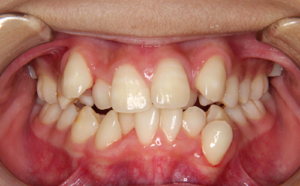 八重歯が唇に当たり口内炎ができる