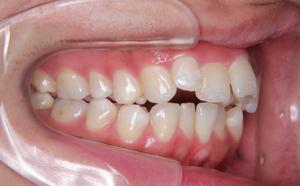 上の歯並びが気になる