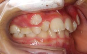 下の前歯のガタガタと八重歯が気になる