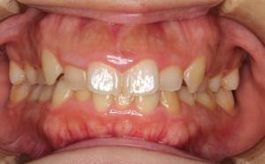 八重歯が気になる